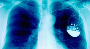 stimulateur-cardiaque