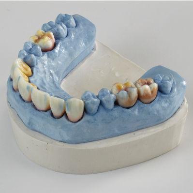 empreinte couronne dentaire