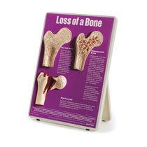 Modèle anatomique os / hanche / d'ostéoporose