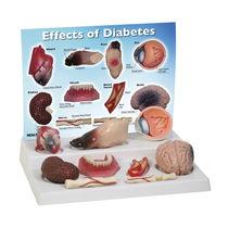 Modèle anatomique pour le diabète / coeur / pied / rein