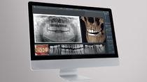 Logiciel d'évaluation de plan de traitement / de contrôle / pour imagerie dentaire
