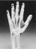 Fantôme de test pour radiographie / main