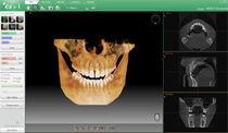 Logiciel de diagnostic / de planification / de simulation / dentaire