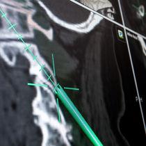 Logiciel de planification / de navigation chirurgicale / pour chirurgie du rachis