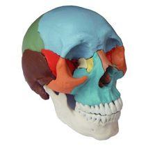 Modèle anatomique crâne / d'enseignement / pathologique / d'adulte