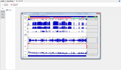 logiciel d'analyse / pour polysomnographie / pour polygraphie / pour cabinet médical