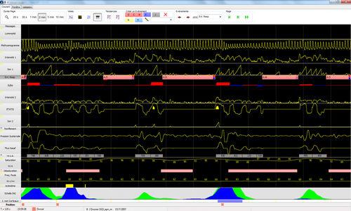 logiciel d'analyse / pour polysomnographie / pour polygraphie / pour hôpital
