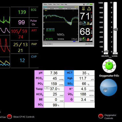 simulateur pour soins cardio-pulmonaires / pour chirurgie cardiaque / moniteur / assisté par ordinateur