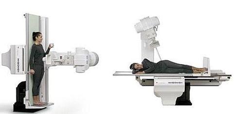Système de radio-fluoroscopie / analogique / numérique / pour radiographie polyvalente OPERA T General Medical Merate