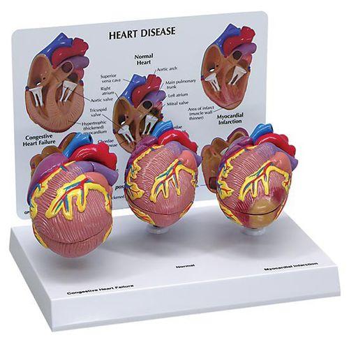 Modèle anatomique coeur / pathologique / en kit 2550 GPI Anatomicals