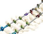 système d'ostéosynthèse occipito-cervico-thoracique / voie postérieure