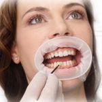 écarteur de joue / labial / dentaire