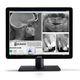 écran de diagnostic / dentaire / LCD / LED