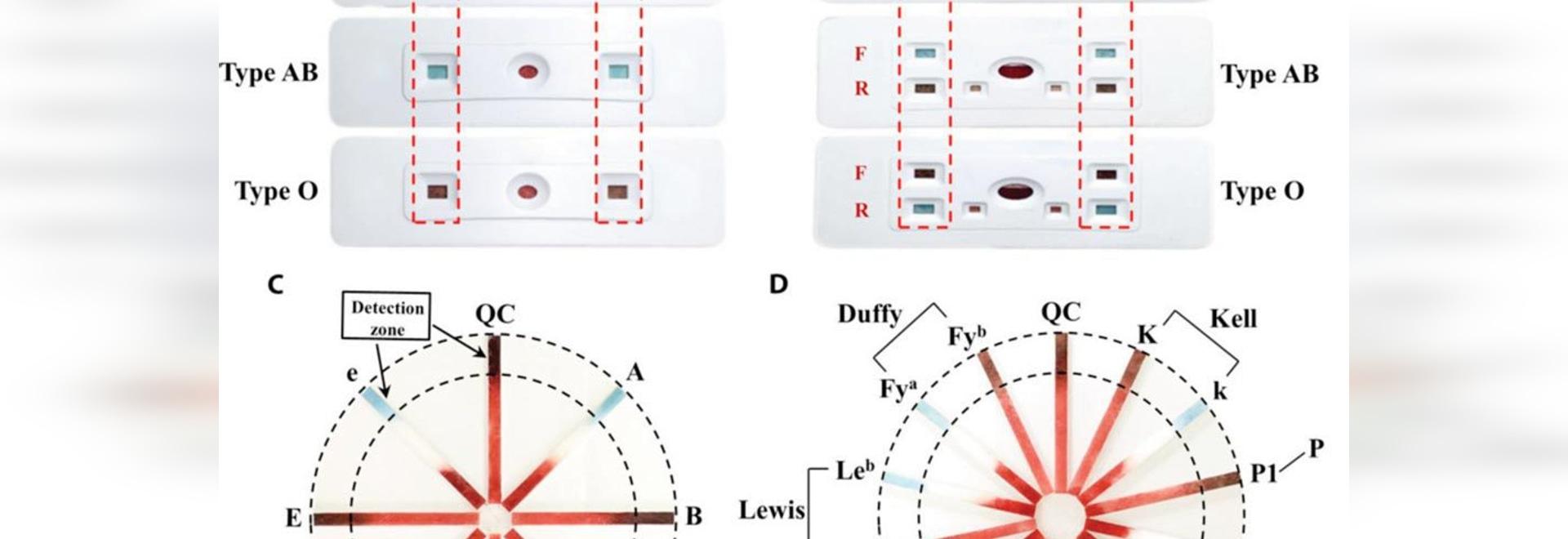 Analyse de POC développée pour la détermination du groupe sanguin fiable