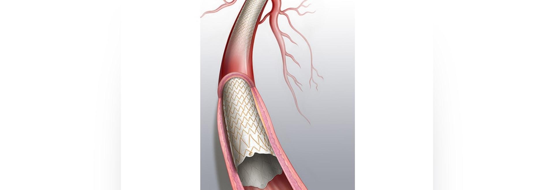 Approbation par la FDA avant la mise sur le marché de l'endoprothèse couverte Covera pour les patients atteints d'insuffisance rénale terminale en hémodialyse