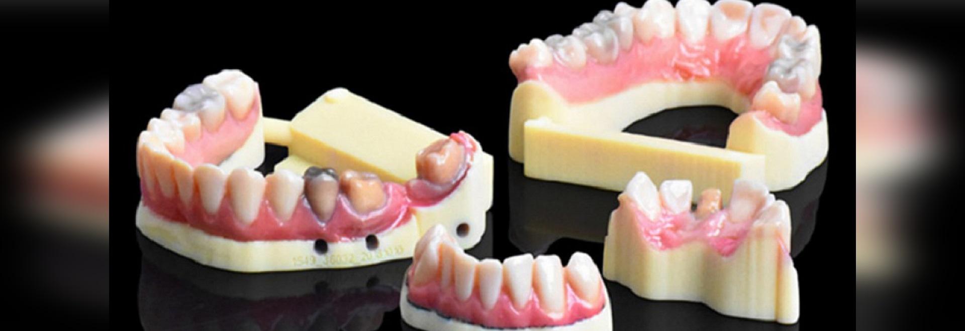 """IDS. """"Stratasys s'apprête à changer la donne"""" avec la nouvelle imprimante dentaire 3D"""
