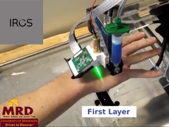 3D BIOPRINTING DIRECTEMENT SUR DÉPLACER l'ANATOMIE HUMAINE - EXCLUSIVITÉ d'IROS17