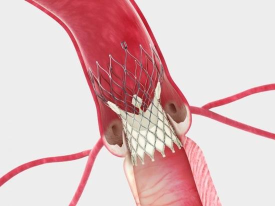 Medtronic étudiera TAVR dans les patients à faible risque avec les valves bicuspidées