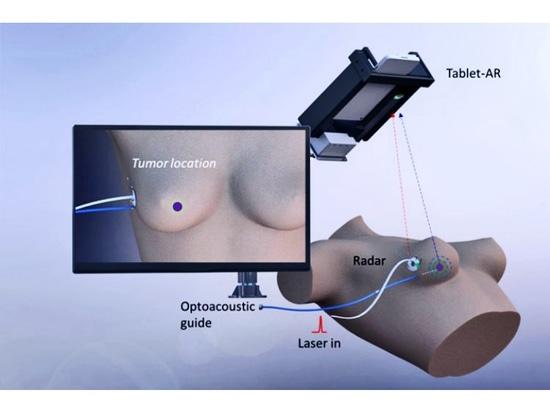 Système optoacoustique de fil de guidage pour la localisation de cancer du sein