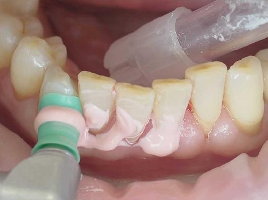 Des implants devraient seulement être insérés quand les conditions périodontiques sont stables