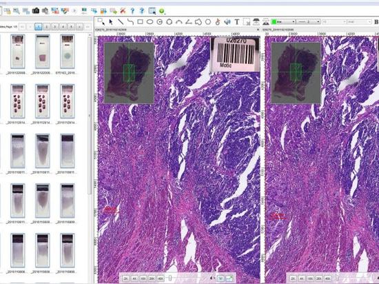 Nouvelle série entière de scanner de représentation de glissière