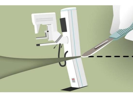 Beaucoup de femmes reçoivent des mammographies inutiles avant chirurgie de réduction des seins