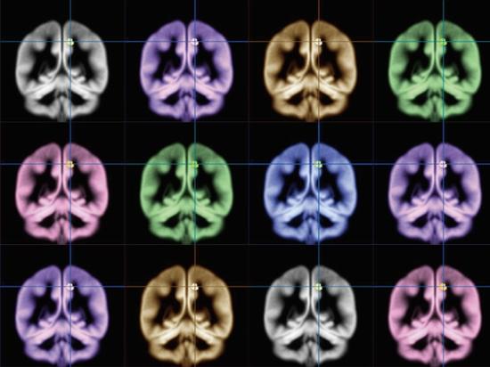 le fMRI indique un manque de sommeil augmente la sensibilité pour faire souffrir