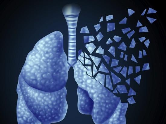 La calculatrice de risque de Vancouver a trouvé pour améliorer le criblage de cancer de poumon