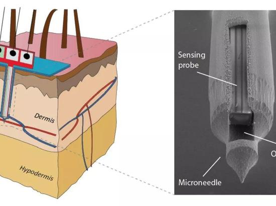 La correction indolore de peau de Microneedle sent exactement le glucose
