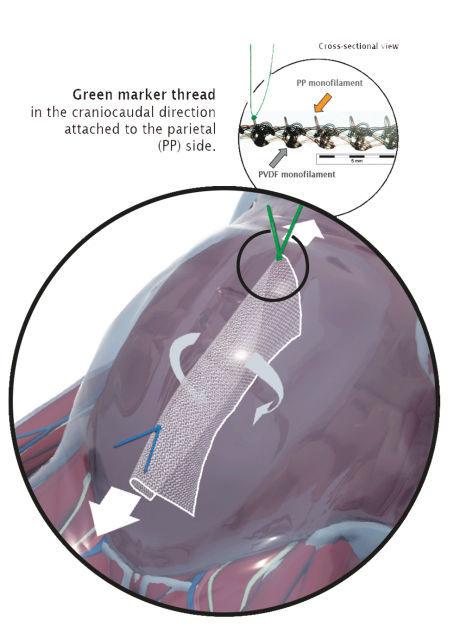 Prothèse pour hernie abdominale DynaMesh® IPOM DynaMesh