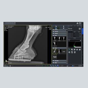 logiciel de gestion / viewer / d'acquisition / de radiographie
