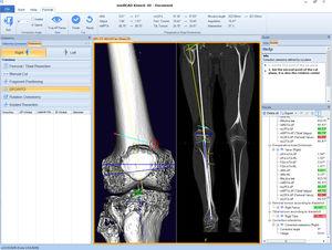 logiciel orthopédique