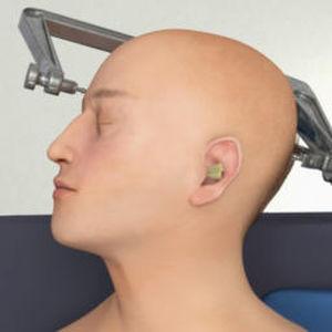 application iOS pour neurochirurgie