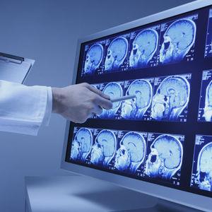 SIR pour imagerie médicale