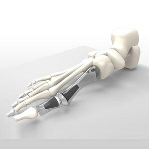 implant d'orteil