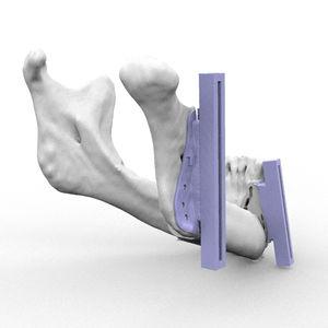 gabarit de résection pour reconstruction maxillo-faciale