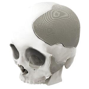 implant crânien sur mesure