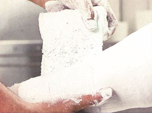 bande de plâtre