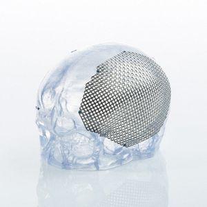 implant crânien