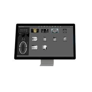 logiciel pour imagerie dentaire