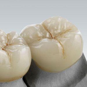 matériau dentaire en céramique de verre