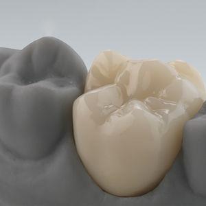 matériau dentaire en zircone