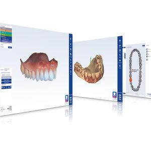 logiciel de conception de prothèse dentaire