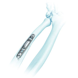 plaque d'ostéotomie ulna