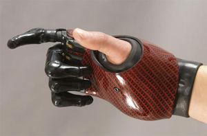 prothèse partielle de main myo-électrique