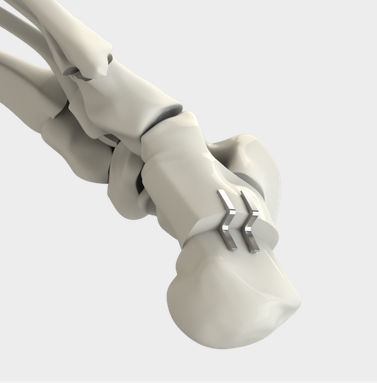 agrafe orthopédique ostéotomie de déplacement du calcanéum