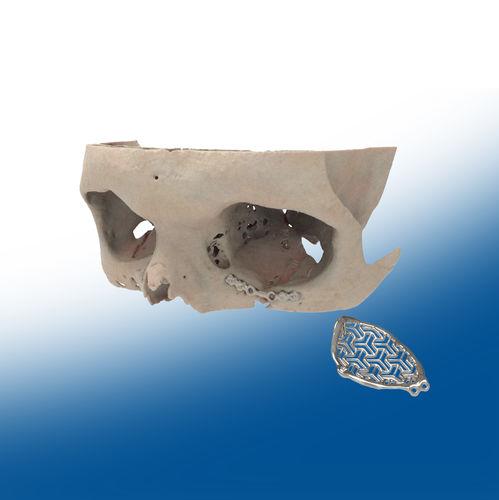 implant périorbital sur mesure