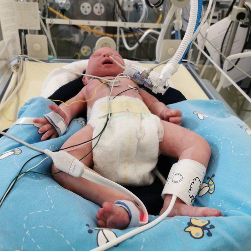simulateur patient pour soins intensifs - neosim AG