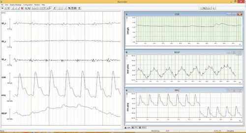 logiciel pour EEG - Brain Products