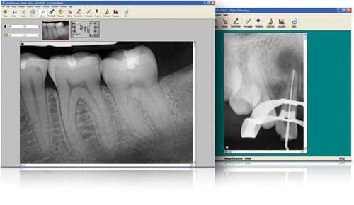 logiciel de visualisation / de fichier DICOM / de radiographie / dentaire